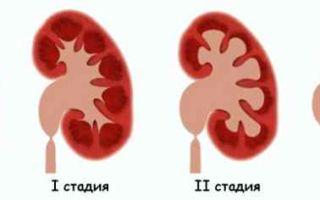 Гидронефротическая трансформация почки