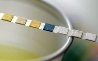 Тест полоски для определения белка в моче