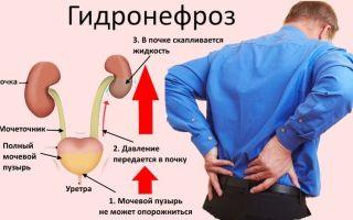 Степени гидронефроза