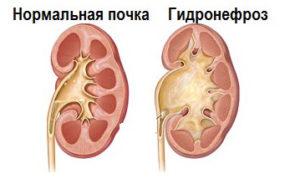 Изменение в почке при гидронефрозе