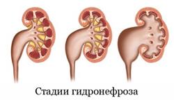 3 стадии гидронефроза наглядно