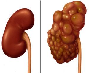 Сравнение здоровой и больной почки
