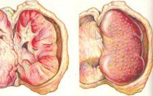 Вторичный паранефрит